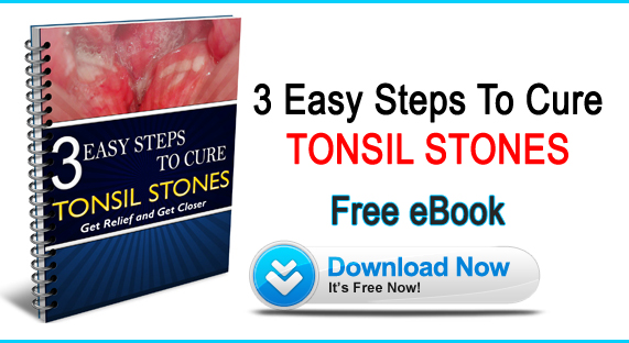 tonsil stones ebook free, Tonsil Stones Free eBook, Cure Tonsil Stones, banish tonsil stones free ebook, tonsil stones remedies book, tonsil stones free home remedies
