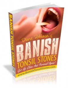 Banish Tonsil Stones