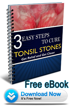 Cure Tonsil Stones