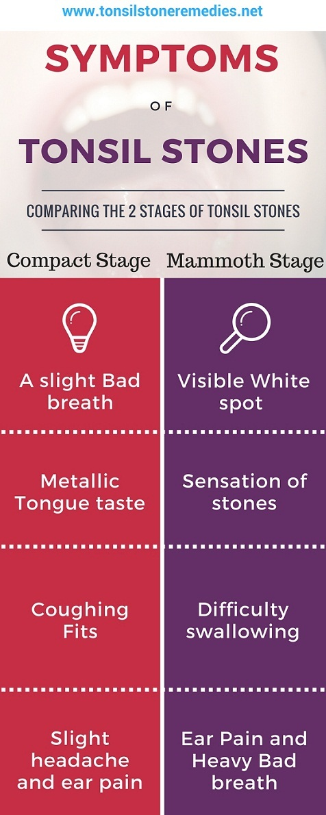 Tonsil stone symptoms Which stage are you at