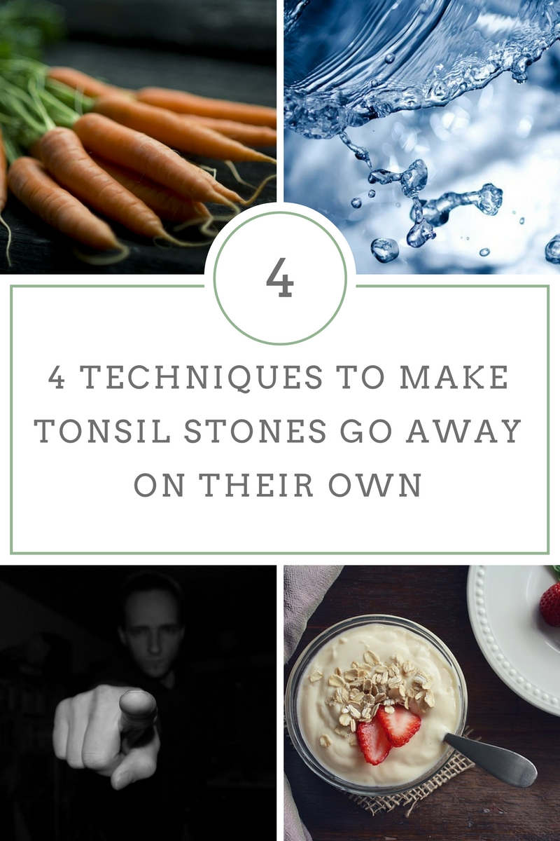 4 Techniques to make tonsil stones go away on their own