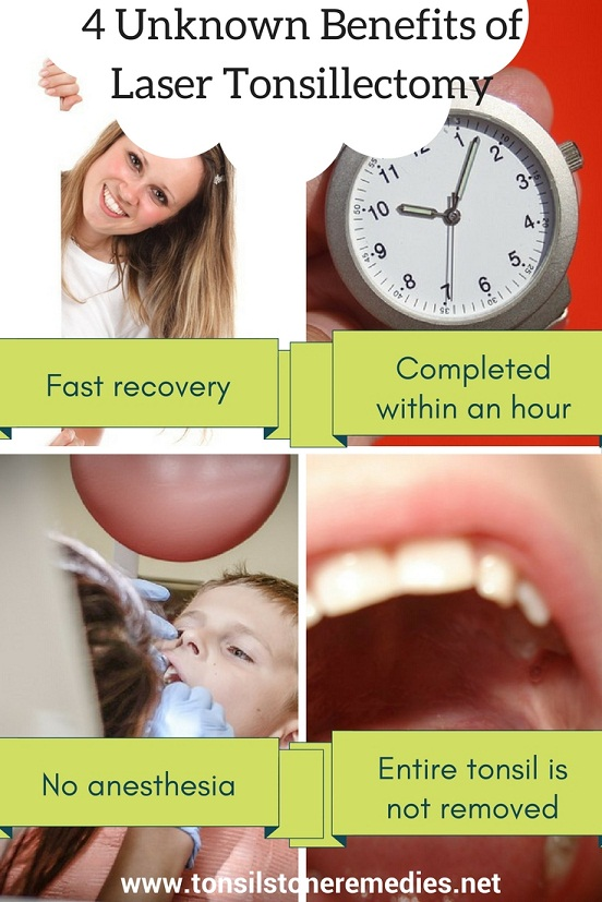 4 Unknown Benefits of Laser Tonsillectomy