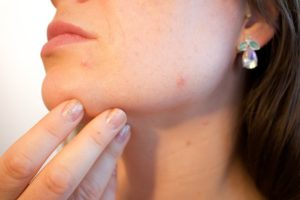whrn to choose home remedies to cure tonsil stones