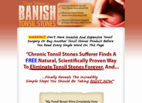 banish tonsil stones, banish tonsil stones review, banish tonsil stones, scam, book, by diane puttman, reviews, pdf, how to get rid of, tonsil stones