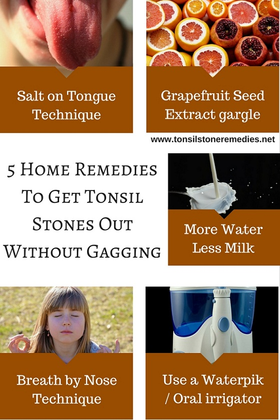 5 Home Remedies To Get rid of Tonsil Stones Without Gagging