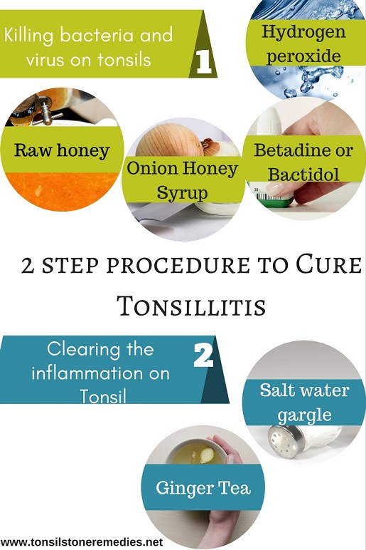 2 step procedure to cure Tonsillitis naturally - Best remedy
