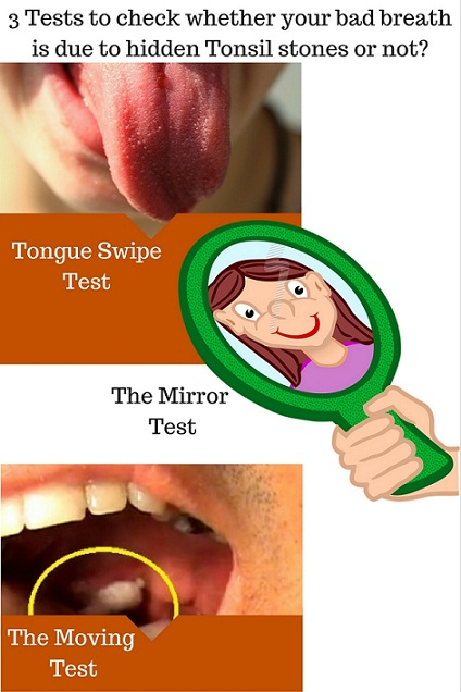 tests to know whether your bad breath is because of tonsil stones or not