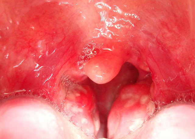 The white lumps caused by tonsillitis