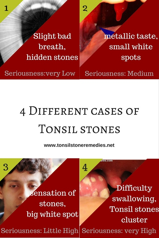 4 Different cases of Tonsil stones and its harmfulness or dangerousness