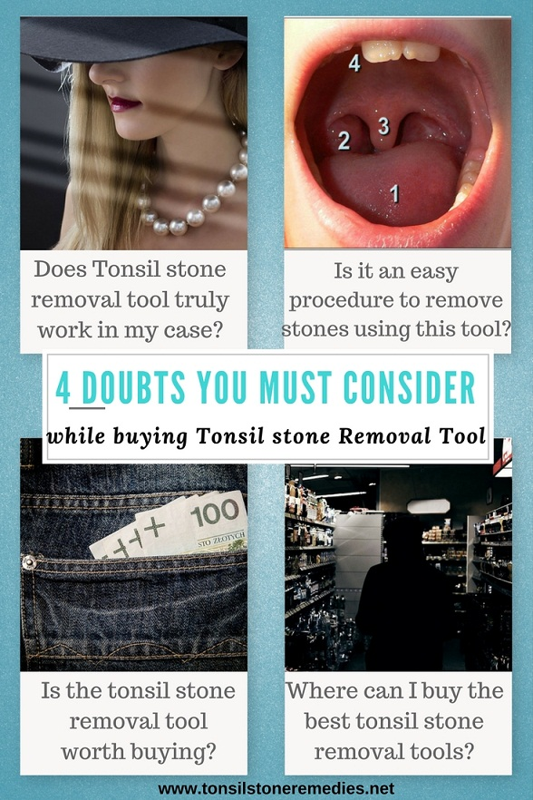 4 doubts you must consider while buying Tonsil stone Removal tool