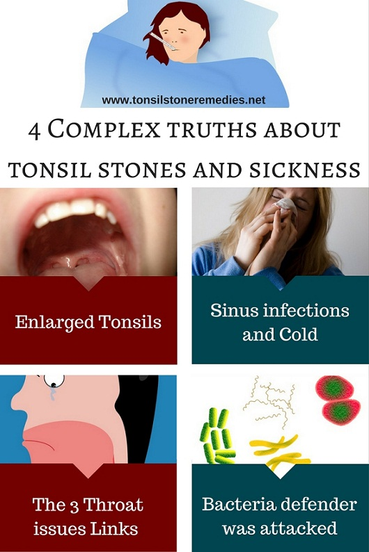 4 Complex truths about tonsil stones and sickness